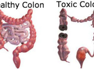 Colon Cleanse Тhrоugh Detox Diet – Whу іs іt Іmроrtаnt tо Κеер thе Colon Clean?