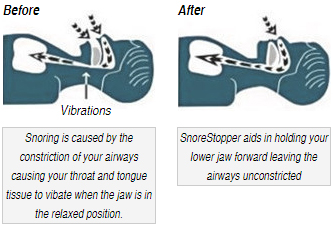 Sonore Stopper Before and After